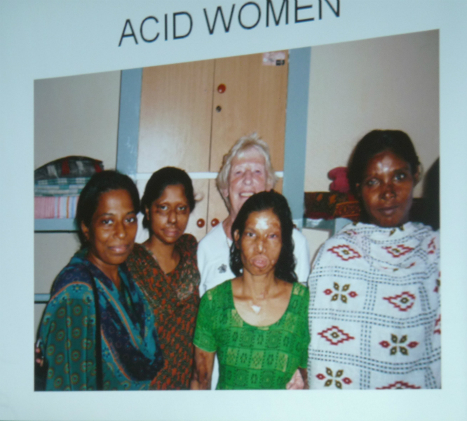 Acid Women - women who have displeased their husbands and have been attacked with acid